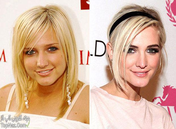 عکس اشلی سیمپسون قبل و بعد از عمل زیبایی بینی