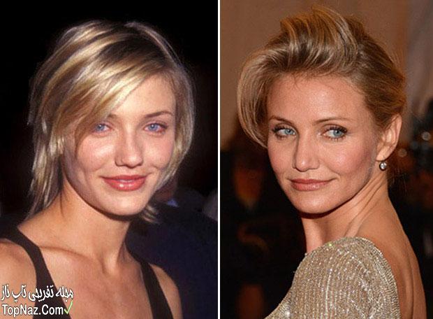 عکس کامرون دیاز قبل و بعد از عمل زیبایی بینی