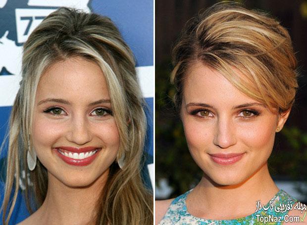 عکس دیانا آگرون قبل و بعد از عمل زیبایی بینی