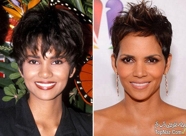 عکس هلی بری قبل و بعد از عمل زیبایی بینی