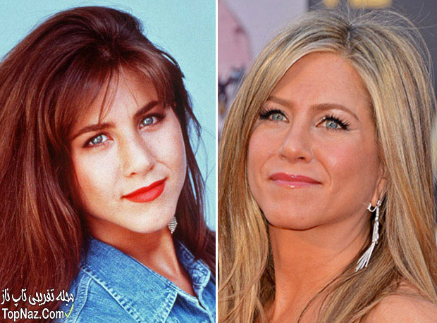 عکس جنیفر انیستون قبل و بعد از عمل زیبایی بینی