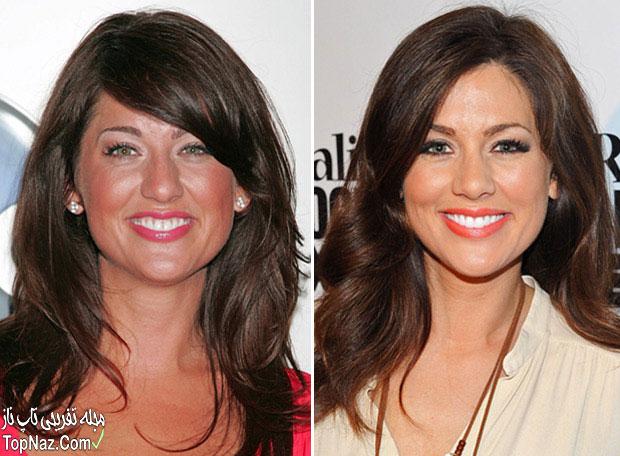 عکس جلیان هریس قبل و بعد از عمل زیبایی بینی