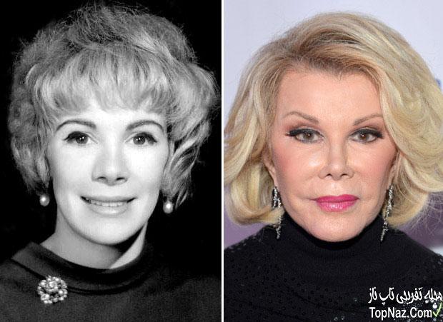 عکس جوان ریورس قبل و بعد از عمل زیبایی بینی