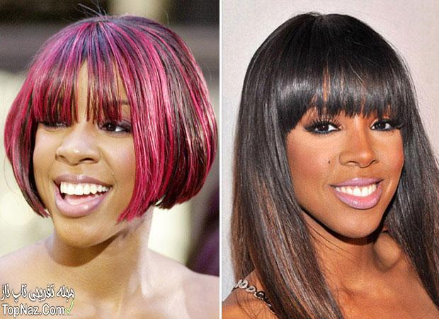 عکس کلی رولند قبل و بعد از عمل زیبایی بینی