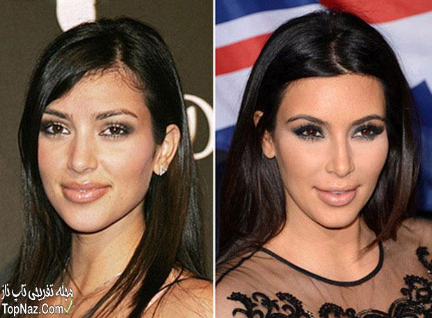 عکس کیم کارداشیان قبل و بعد از عمل زیبایی بینی