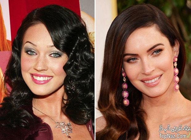 عکس مگان فاکس قبل و بعد از عمل زیبایی بینی