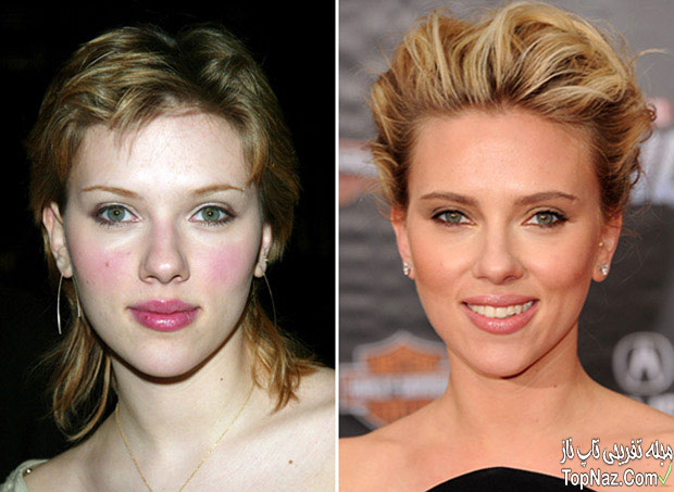 عکس اسکارلت جوهانسون قبل و بعد از عمل زیبایی بینی