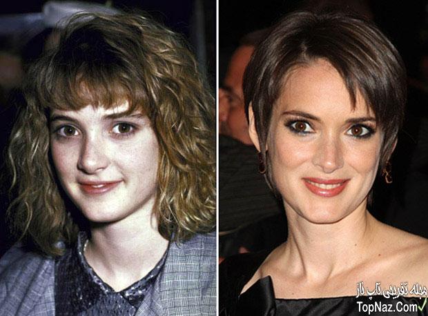 عکس وینونا ریدر قبل و بعد از عمل زیبایی بینی