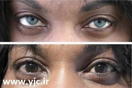 عمل جراحی برای تغییر رنگ چشم ها