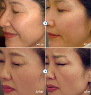 طب چینی, زیبای صورت, تزریق ژل