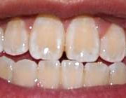 10 دلیل بد رنگ شدن دندان و رفع بد رنگی