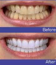سفید کننده دندان,انواع سفید کننده دندان,سفید کننده های دندان,پودر سفید کننده دندان