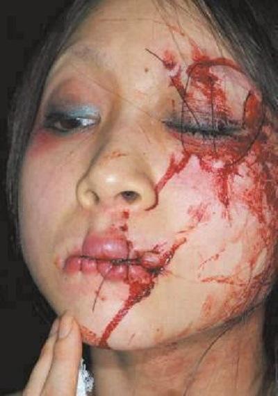 دوختن چشم و لب زن خارجی در عربستان