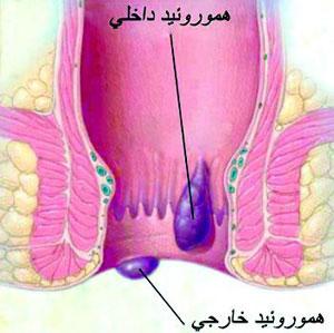 علائم بواسیر, مقعد, سرطان رکتال