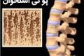 6 عامل پوکی استخوان