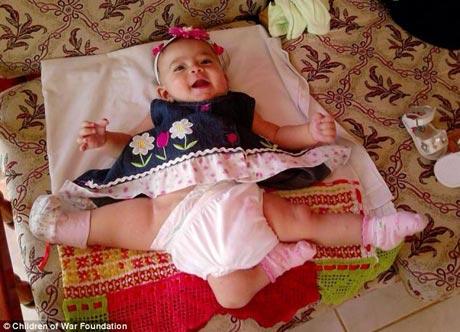 دختر زیبایی که سه پا دارد
