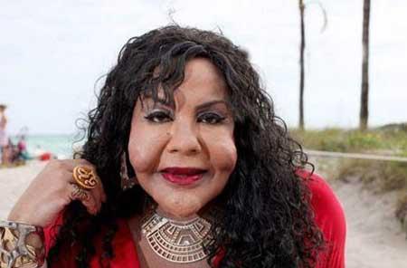 جراحی فاجعه آمیز روی چهره زنان!