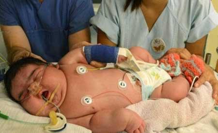چاق ترین نوزاد دنیا رکورد زد