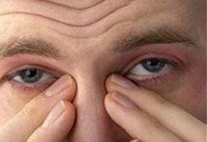 مشکل خشک شدن چشم ها!
