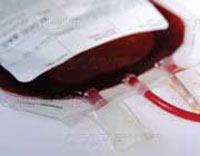 ایدز,راههای تشخیص ایدز,راههای انتقال بیماری ایدز