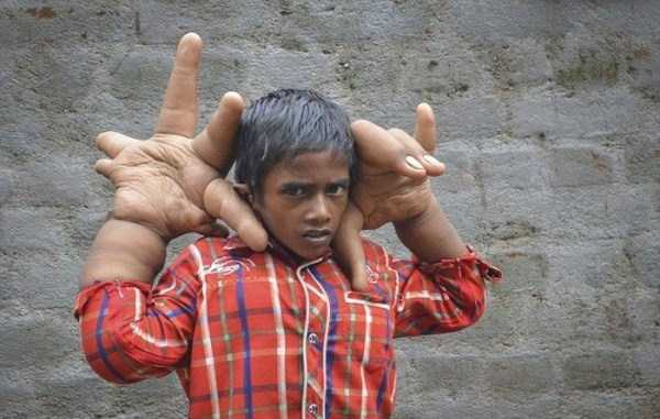 پسر بچه هندی با دست های غول پیکر و عجیب!