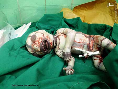 عکس های وحشتناک نوزادی با بیماری عجیب
