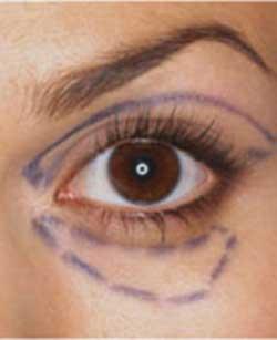 جلوگیری از افتادگی پلک ها