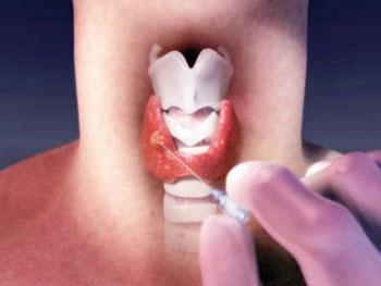 نشانههای سرطان تیروئید, درمان سرطان تیروئید