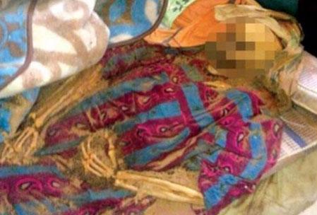 عکس مادر کویتی که بعد از 8 ماه در بستر پوسید!