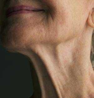جلوگیری از افتادن پوست گردن و آویزان شدنش