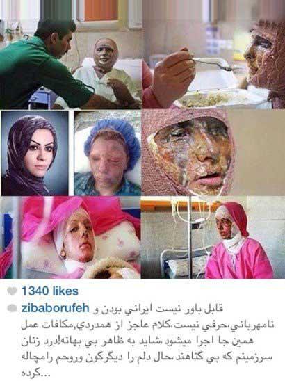 اخبار,اخبار فرهنگی,واکنش متفاوت هنرمندان در صفحات شخصی خود نسبت به اسیدپاشی ها