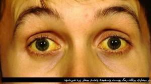 زردی یا یرقان چیست؟ درمان یرقان