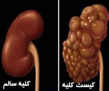 درمان کیست کلیه, علائم کیست کلیه