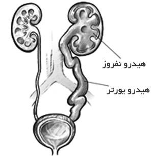 عفونتهاي ادراري, علائم ريفلاکس ادراري