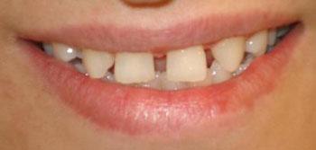 فاصله دندان