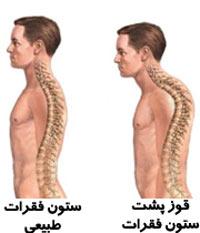 حرکت ورزشی برای از بین بردن قوز پشت کمر