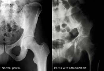 استحکام استخوانها, کلسیم