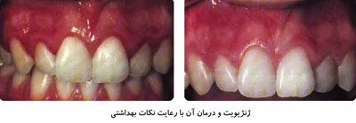 نشانههای بیماری لثه, بهداشت دهان و دندان