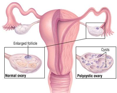 تنبلی تخمدان