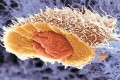 احتمال بروز سرطان سینه در مردان با داروهای بدنسازی!