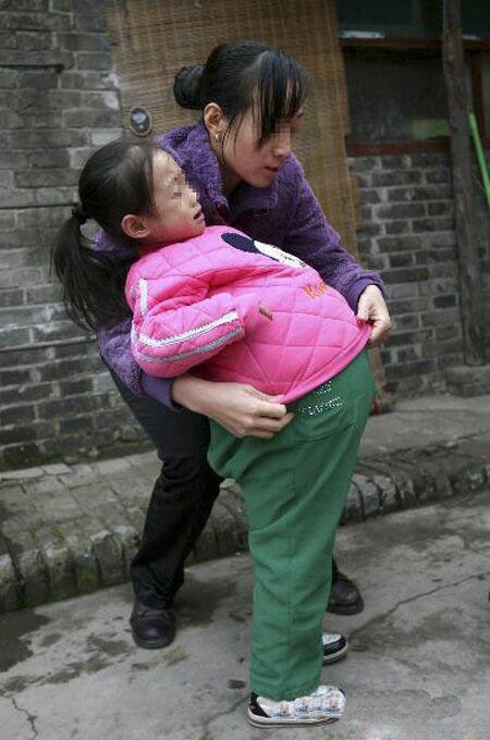 عکس های يك دختربچه بدشانس با شکم باد کرده!! + عکس