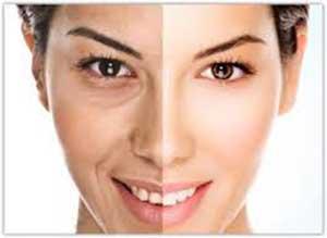 روشن تر شدن پوست صورت, روشنسازی پوست