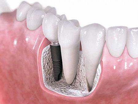ایمپلنت دندان برای چه کسانی مجاز است