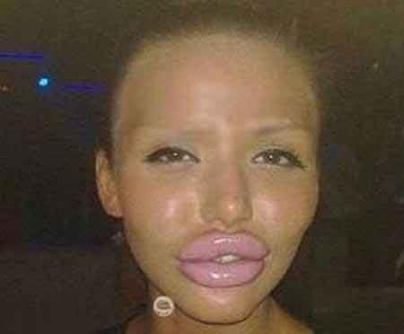 جراحی های وحشتناک زیبایی روی صورت دختر جوان!