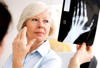 بیماریهای کلیوی, آرتریت