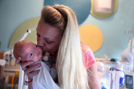 اخبار,اخبار گوناگون,تولد نوزاد بدون بینی