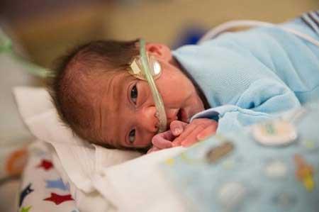 به دنیا آمدن نوزاد دختر از بدن مادر فوت شده!