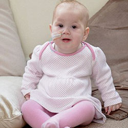 اعصای داخلی بدن نوزاد دختر در خارج از بدنش است