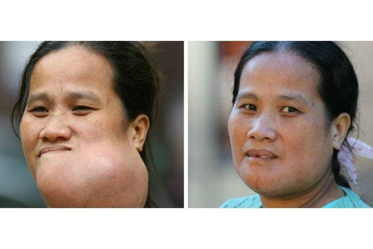 عکس چهره وحشتناک زن فیلیپینی که با جراحی زیبایی ترمیم شد