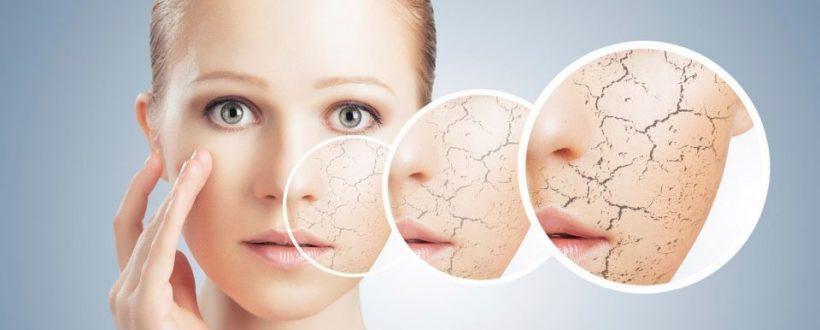 مشکل خشک شدن پوست + درمان خشکی پوست با روش های طبیعی